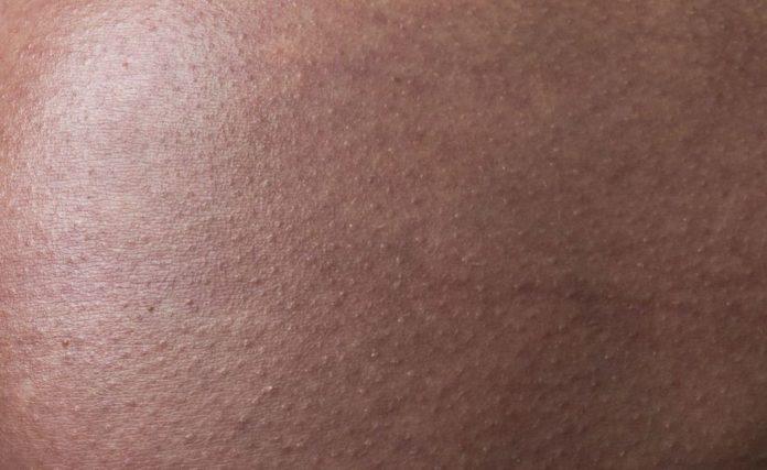 Dermatitis en el embarazo