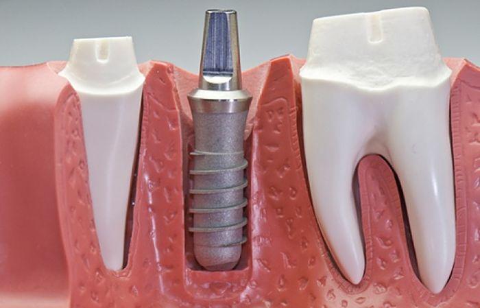 Los implantes dentales son máscostosos porque requieren de intervenciónquirúrgica y mejora la apariencia. Son un método moderno y eficaz para recuperar su sonrisa y seguro está dudando en colocárselo, pues le explicaremos porque es la mejor opción sin importar su costo.