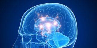 neuroestimulación