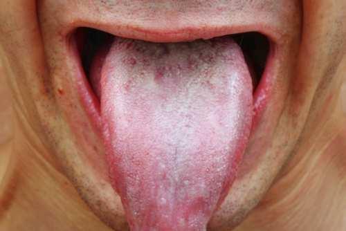 Leucoplasia